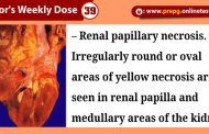 Know All About: Renal Papillary Necrosis