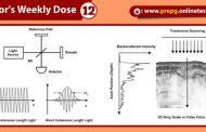 Know All About : Optical coherence tomography (OCT)