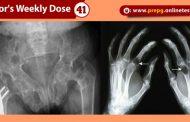 Treatment of Renal Osteodystrophy